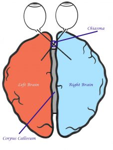 Labelled hemispheres